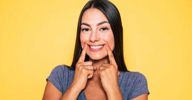 amarillear-dientes