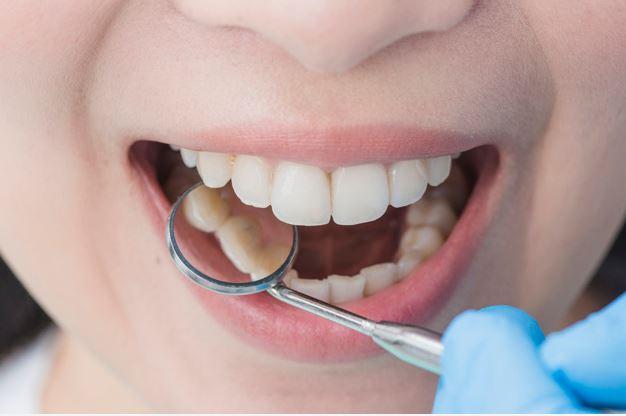 ahorrar dinero yendo al odontólogo