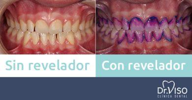 revelador de placa antes y después