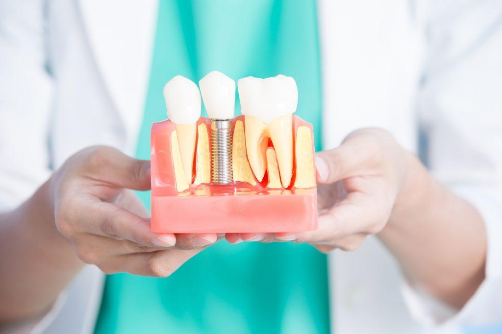 ¿se me va a caer el implante dental?