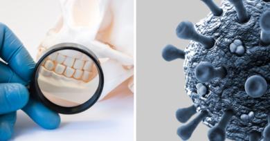 enfermedad de las encías y coronavirus